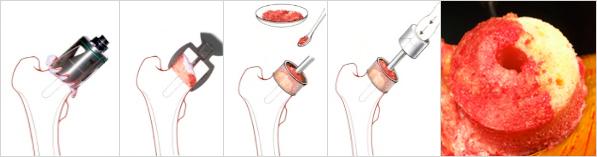 artroplasticaRivestimento