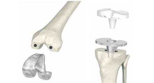 artroplastica totale ginocchio
